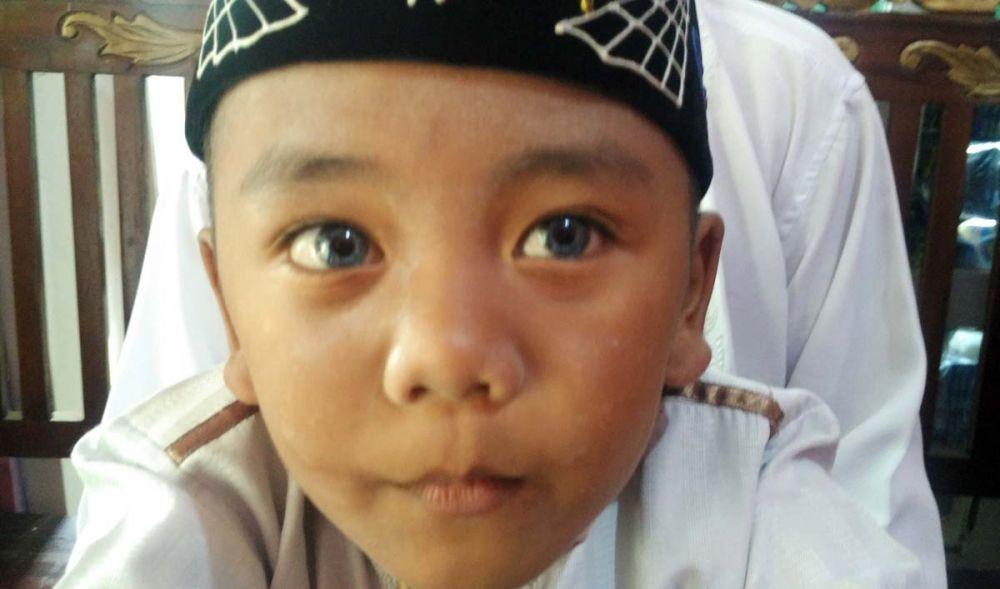 Lensa kedua mata Fajrin yang berwarna biru