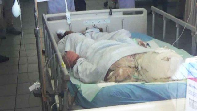 Hasil gambar untuk Pria yang Bakar Diri Bareng Kekasihnya Meninggal akibat Perburukan Organ Tubuh